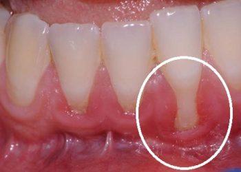 Colletti dentali scoperti: cosa fare?
