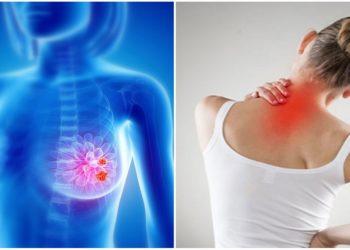 Cancro al seno: antibiotico contro l'acne per curarlo